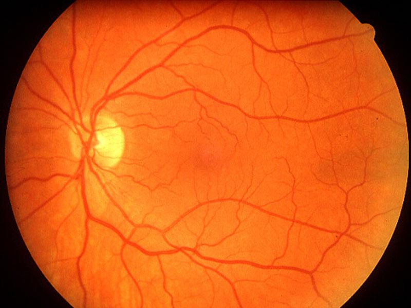retinal photography