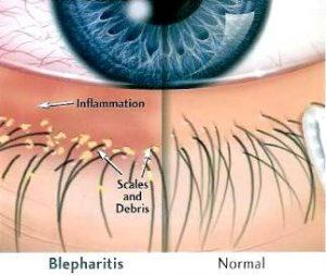 Blepharitis and normal eye comparison